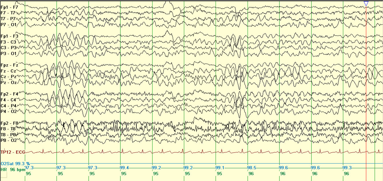 EPILEPSY WITH MYOCLONIC-ATONIC SEIZURES